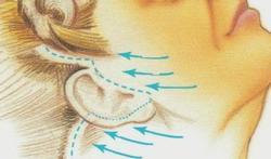 Traitement du visage aux fils Aptos