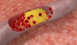 Cancer : le rôle du mauvais cholestérol