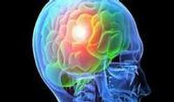 Comment la pollution attaque le cerveau