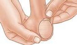 Cancer des testicules : à quels signes faut-il être attentif ?