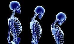 Le bien-être mental protège les os