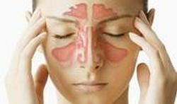 Quel traitement contre la sinusite ?